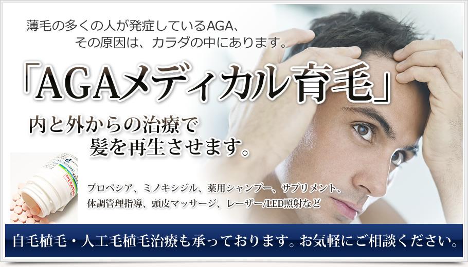 AGA「男性型脱毛症」